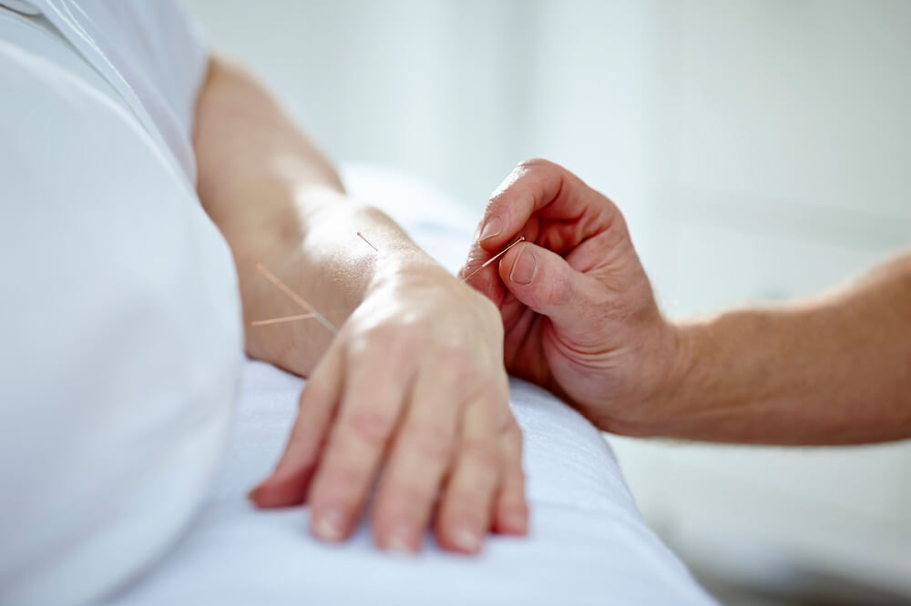 Doctor performing acupuncture on a patients hand